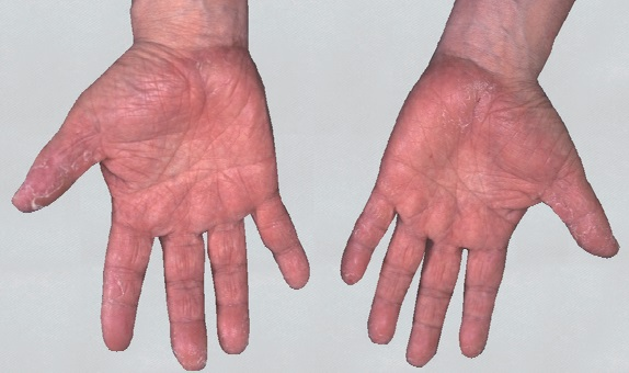 手湿疹両手